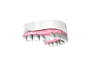 remplacer-une-dent