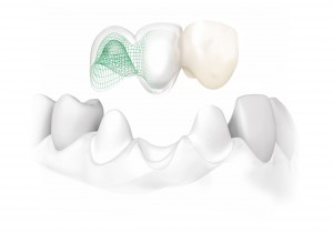NobelProcera-all-ceramic-bridge-on-natural-teeth
