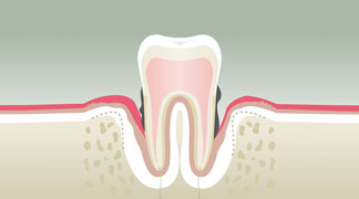 parodontologie4